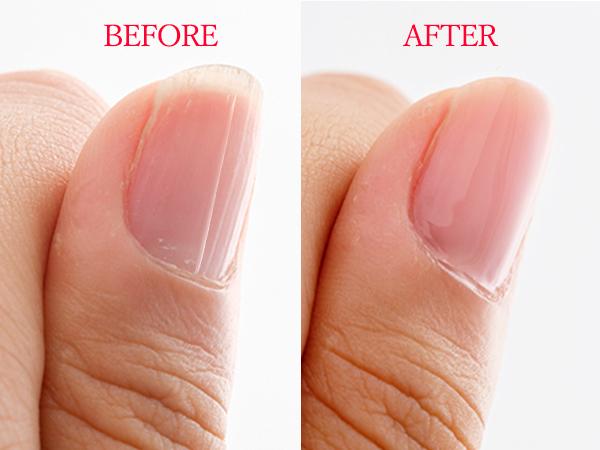 爪の縦線対策